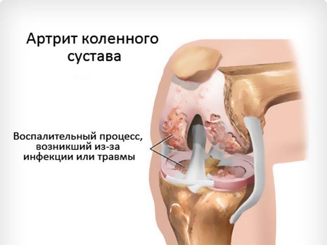 Гнойный артрит голеностопного сустава