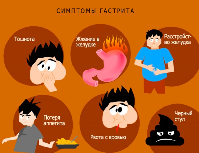 Симптомы гастрита
