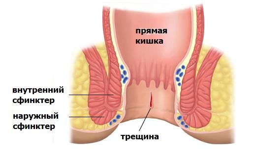 Причины анальной трещины