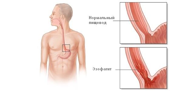 Заболевание эзофагит