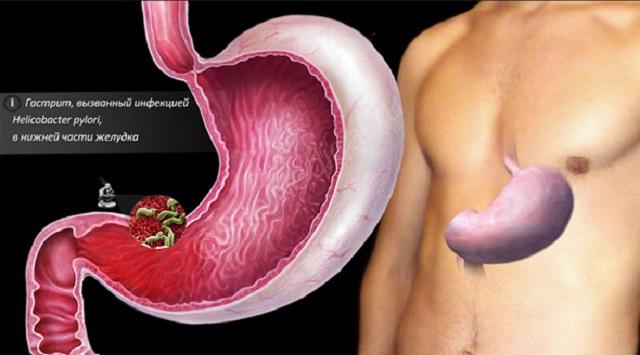 Хеликобактер пилори, инфекция которая вызывает гастрит