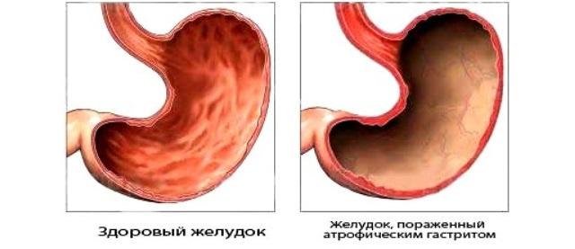 Сравнение здорового и желудка пораженного атрофическим гастритом