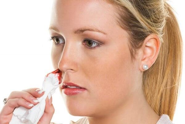 Симптомы носового кровотечения