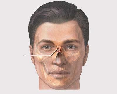 Диагностика травм носа