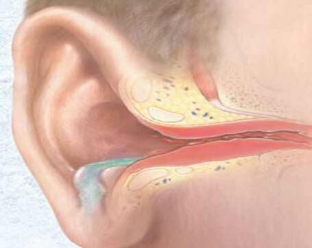 Гнойный отит уха