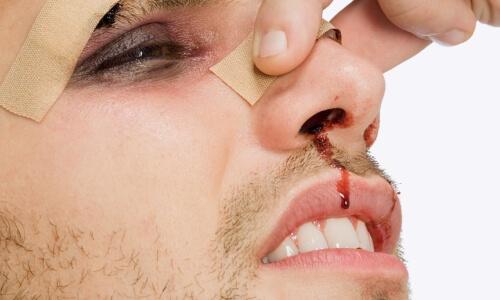 Переднее носовое кровотечение