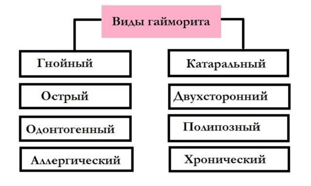 Разновидности гайморита