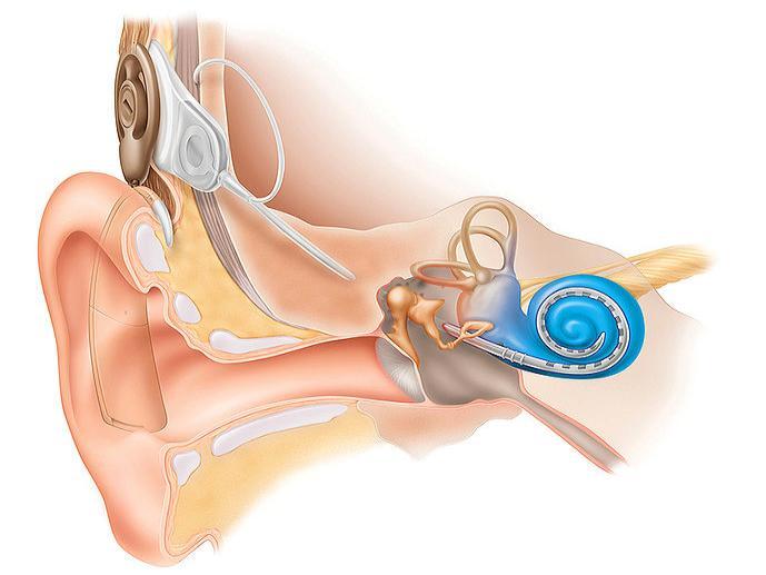Кохлеарный имплантант