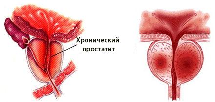 masturbatsiya-pri-lechenii-trihomoniaza