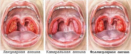фото герпесная ангина у детей