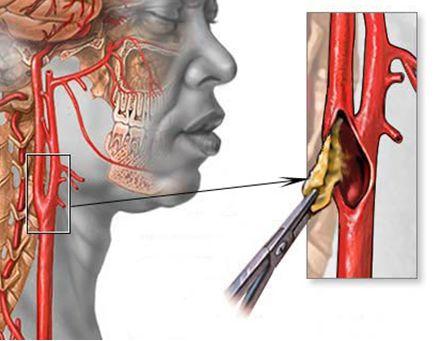 Лечение стеноза сонной артерии