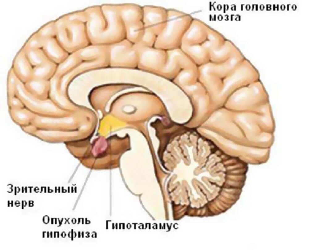 Что такое аденома гипофиза головного мозга