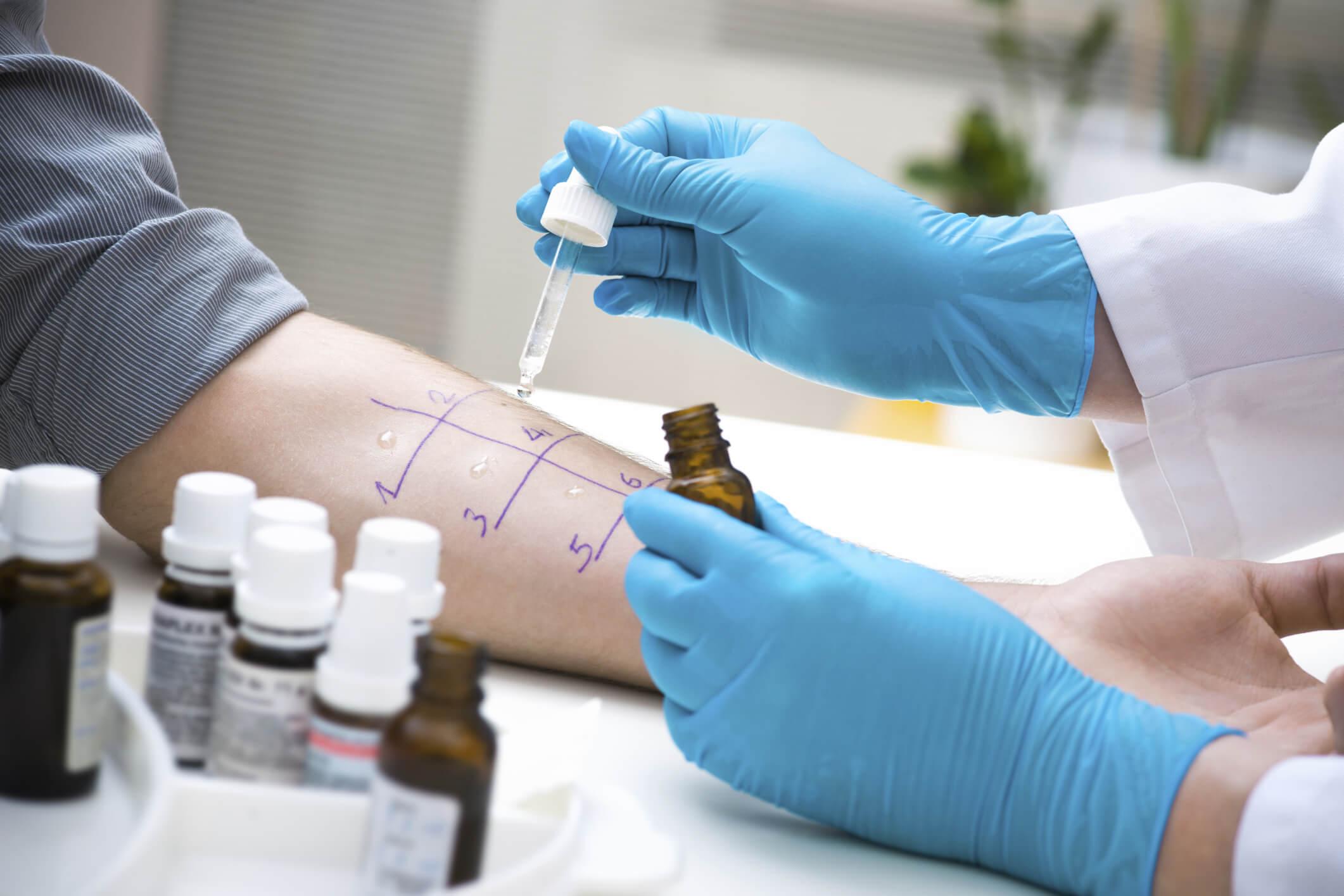 Диагностика алергии