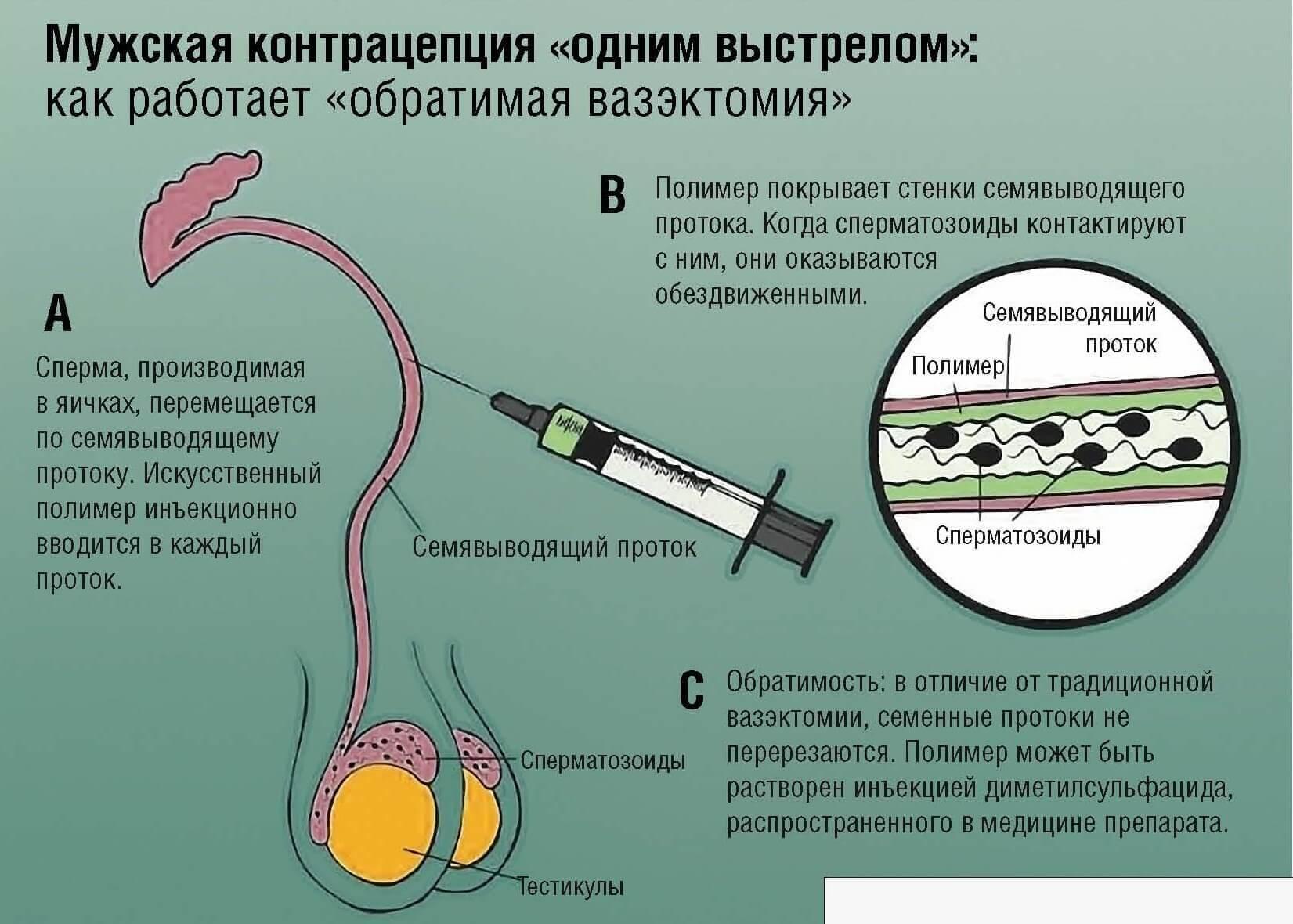 Обратная вазектомия