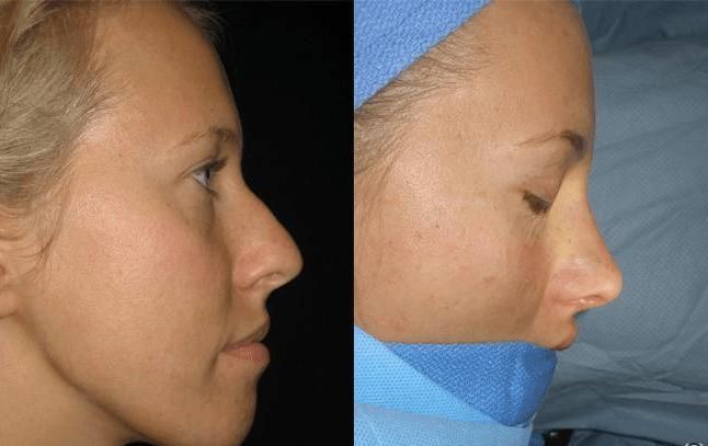 Пластика носа до и после операции