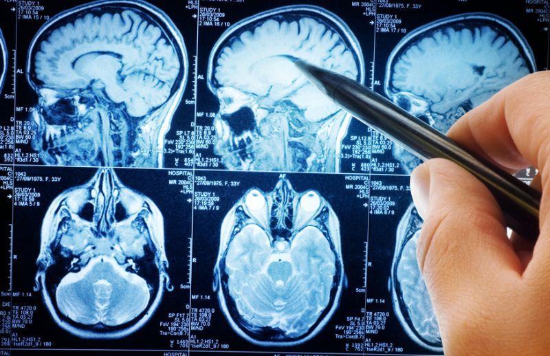 МРТ головы при внутричерепном давлении
