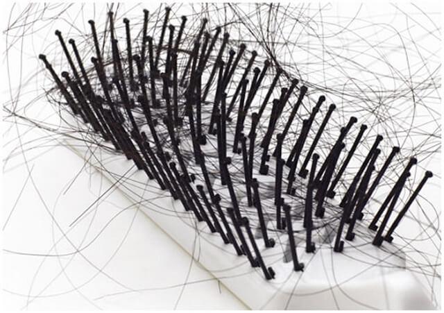 Выпадение волос - один из симптомов гастрита