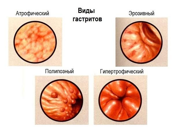 Разновидности гастрита