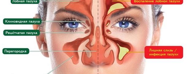 Разница между здоровым синусом и гайморитом