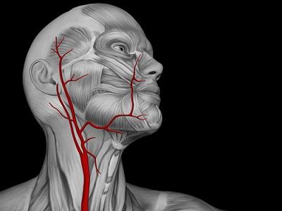 Симптомы стеноза сонной артерии
