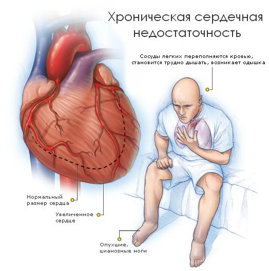 Первая помощь при сердечной недостаточности