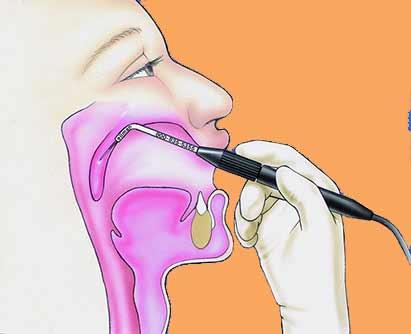 Лечение храпа хирургическим способом