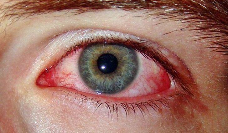 Симптомы болезни Бехчета