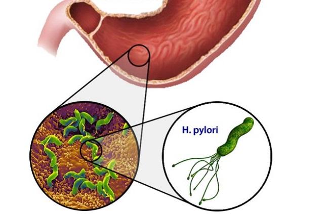 Хеликобактер пилори - одна из причин гастрита