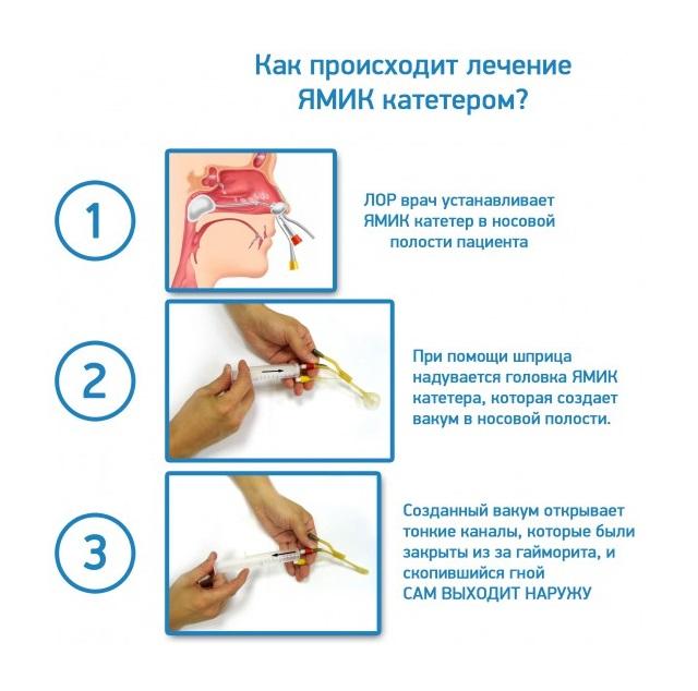 Последовательность действий при лечении