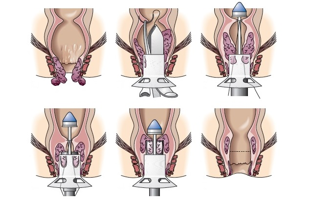 Операция по методу Лонго