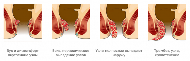 Симптомы на разных стадиях геморроя