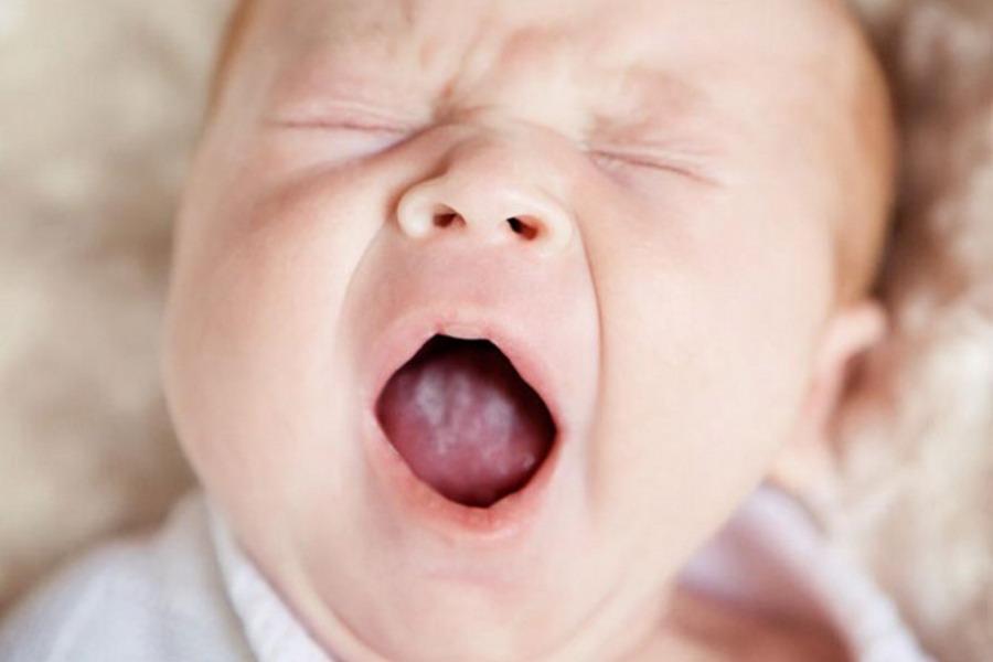 Молочница у грудного ребенка: симптомы и лечение